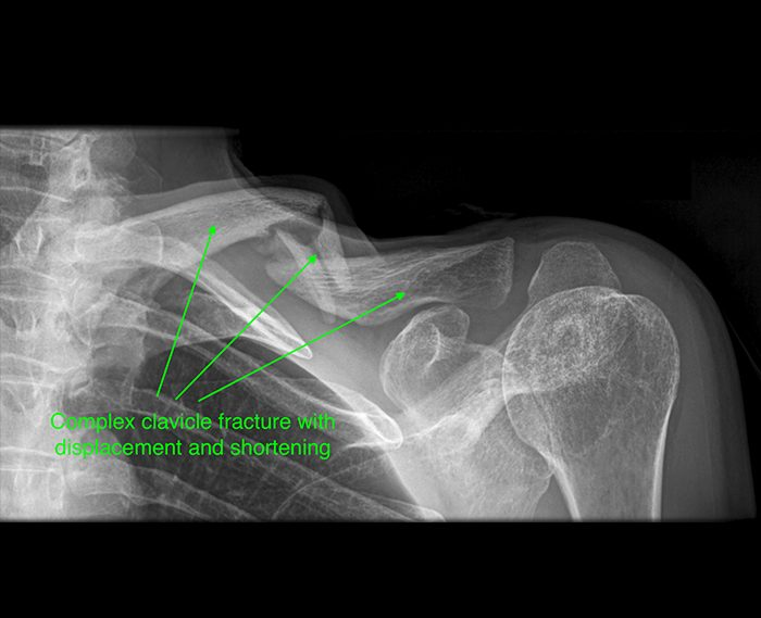 Complex clavicle fracture