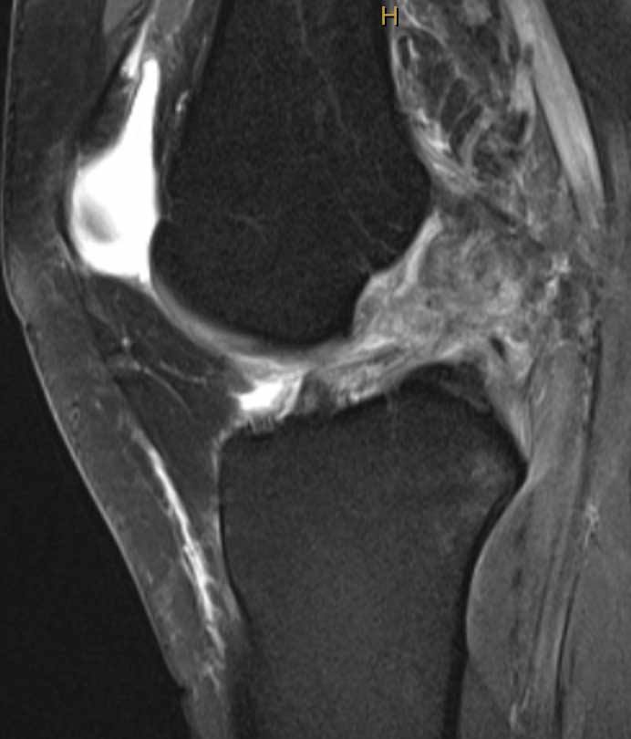ACL reconstruction in high risk patients